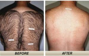 laser hair removal - major back hair