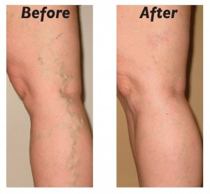 Varicose vein sclerotherapy